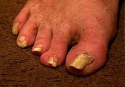 bardzo brzydkie paznokcie